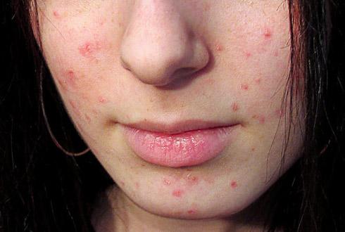 Угревая сыпь у подростков, лечение и профилактика