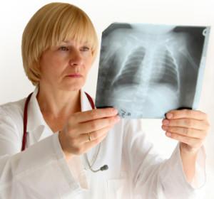 Нередко, во время лечения бронхита выписываются антибиотики