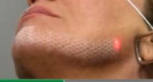 Лазерная чистка лица представляет собой точечное воздействие лазером на определенную область эпидермиса, без нарушения его целостности