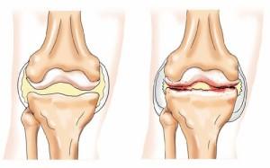 Первой целью лечения болезни есть устранение боли в зоне колена