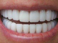 Современные техники наращивания зубов на штифте