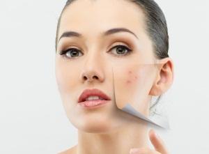 Избавляемся от шрамов от прыщей, создаем красивую и здоровую кожу