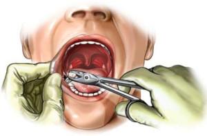 Удаление зуба мудрости - процесс довольно болезненный и неприятный