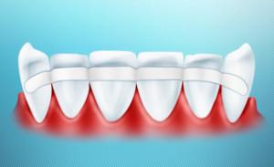 В целом процедуру шинирования современные стоматологи выполняют очень качественно и практически безболезненно