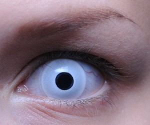 Дефект глаз – врожденный или послеоперационный – можно устранить с помощью косметических или оттеночных контактных линз