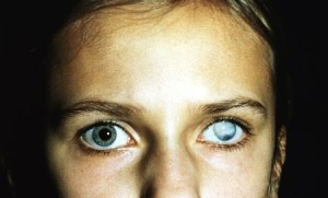 Среди серьезных нарушений зрения бельмо встречается весьма часто