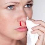 Кровотечение из носа при беременности: причина для беспокойства или норма