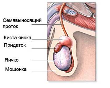 Киста яичек у мужчин: причины, симптомы и лечение