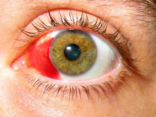 Лечение кровоизлияния в сетчатку глаза