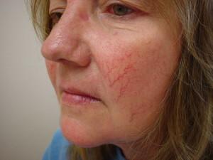 При куперозе появляются покраснения на участках кожи, образуются звездочки и сеточки из тончайших капилляров