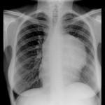 Лимфома средостения: симптомы, диагностика, методы лечения