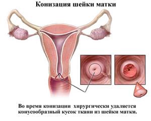 Менструации после операции будут намного обильнее и продолжительнее, нежели раньше