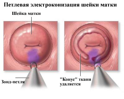 Месячные после конизации шейки матки и возможность родов в будущем