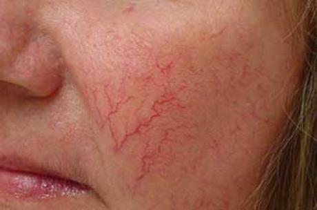 Что такое купероз, как его вылечить, и как ухаживать за проблемной кожей