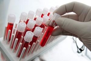 Любой вид диагностики не обойдется без общего анализа крови, а значит и лейкоцитарной формулы