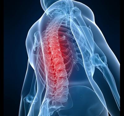 Что такое хондроз: симптомы и методы лечения