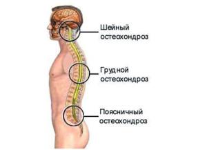 Хондроз – это заболевание дегенеративно-дистрофического характера, которое нарушает целостность межпозвоночных дисков