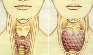 Именно чрезмерная выработка гормонов, а также наоборот, их недостаток могут стать следствием неоднородной структуры щитовидной железы