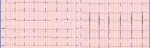 Синдром ранней реполяризации сердца -  это появление в ЭКГ (электрокардиографии) нехарактерных для нее изменений