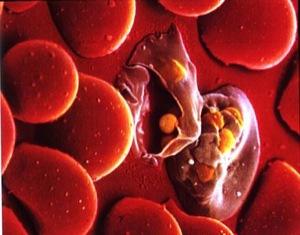 Малярия относится к тяжёлым инфекционным заболеваниям, в результате попадания в организм микроба плазмодия