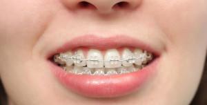 Ухаживать зубами во время ношения брекетов нужно с особой тщательностью, так как это влияет на результат