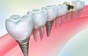 Имплантант зуба: сущность и стоимость