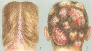 Стригущий лишай чаще всего поражает именно волосистую часть головы, происходит обламывание волос на уровне одного сантиметра от кожного покрова