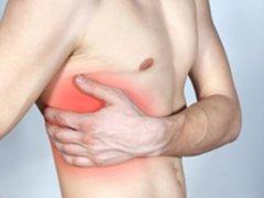 Межреберная невралгия: медикаментозное лечение и диагностика