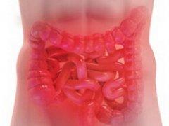 Синдром раздраженного кишечника: причины недуга, лечение