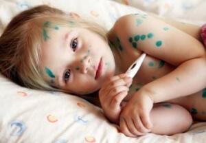 Родители должны быть готовы и знать первые признаки ветрянки, как они проявляются и чем лечить заболевшего ребенка
