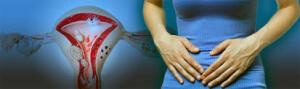 Основным симптомом данного заболевания являются регулярные болевые ощущения внизу живота
