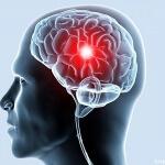 Склероз сосудов головного мозга: признаки болезни, причины, диагностика и лечение