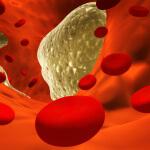 9 способов быстро снизить холестерин
