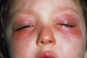 Покраснение кожных покровов и слезотечение, также может свидетельствовать о холодовом дерматите