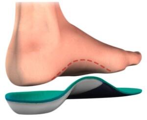 В лечении плоскостопия рекомендуется комплексное лечени