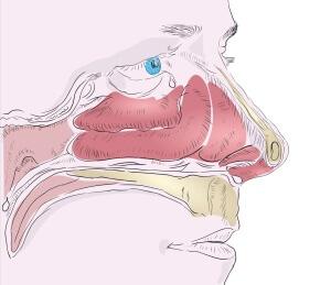 Вазомоторный ринит - это нарушение носового дыхания, вследствие сужения полости носа из-за отека слизистых оболочек