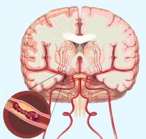 Головная боль - один из симптомов нарушения мозгового кровообращения