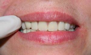 В основном пациенты положительно отзываются о  съемных зубных протезах