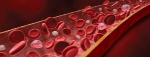Полицитемия - повышение уровня красных кровяных телец в крови