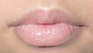 Причиной онемения языка и губ могут стать психические расстройства и невриты