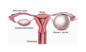 Причиной увеличения яичника может быть киста
