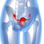Женское здоровье: причины увеличения правого яичника