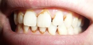 Курение - причина возникновения зубного камня