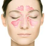 Симптомы синусита у взрослых и способы борьбы с недугом