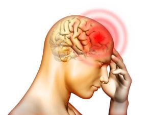 Одним из симптомов синусита является сильная головная боль