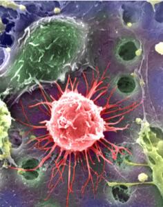 Возбудителем бруцеллеза является бактерия бруцелла