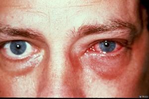 Конъюнктивит - одна из распространенных причин покраснения глазного яблока