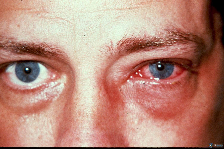 В домашних условиях лечить покраснение глаза 128