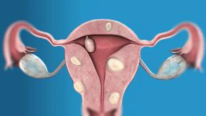 Для лечения фибромы матки применяют, как консервативное так и хирургическое лечение