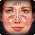 Киста носовой пазухи: причины, симптомы, лечение